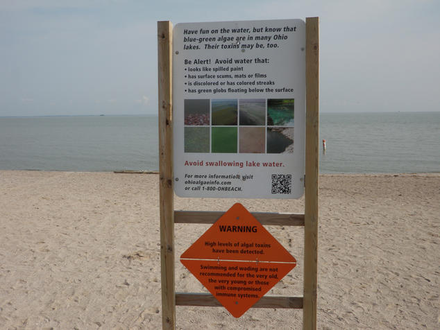 Sign on the shores of a lake, warning people to watch out for harmful algae